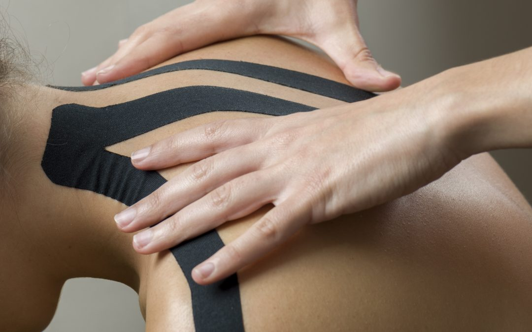 Kinesiology Tape: an Insider's Guide