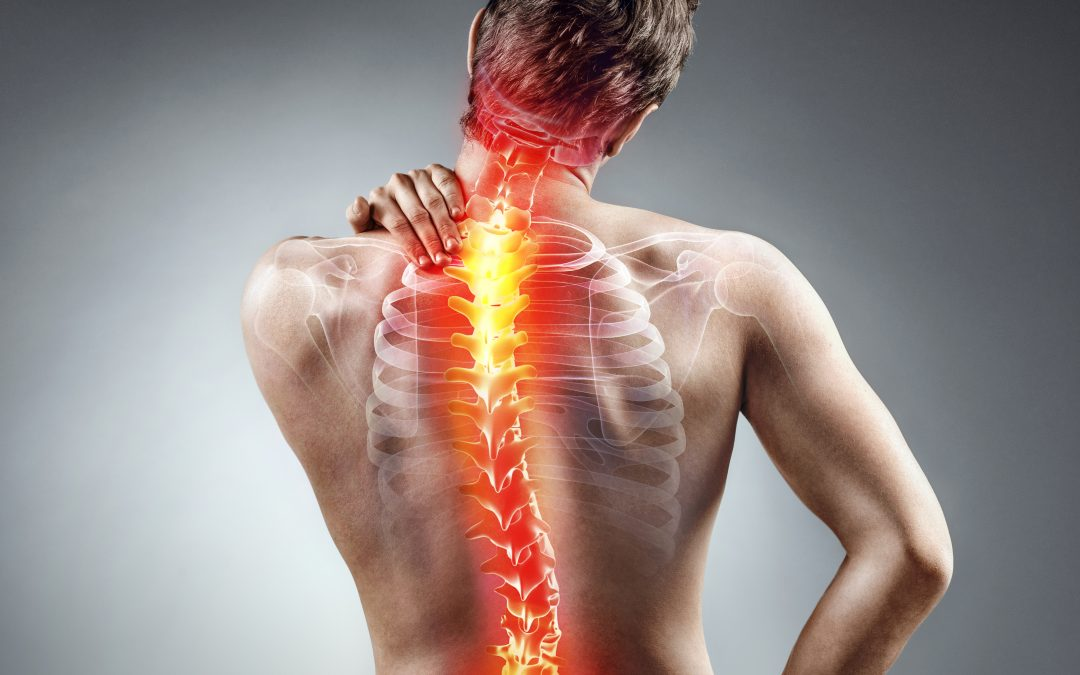 Scoliosis and the Benefits of Massage